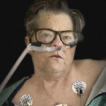 A woman looks at the camera, with a breathing tube in her nose, and EKG wires taped to her upper chest.